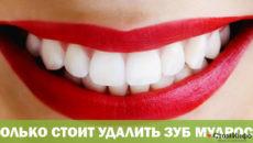 Сколько стоит удалить зуб мудрости