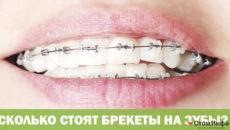 Сколько стоят брекеты на зубы