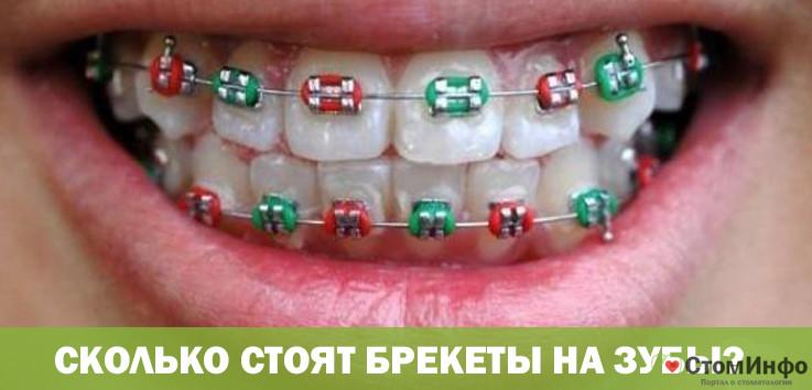 Сколько стоят брекеты на зубы? в Москве и области