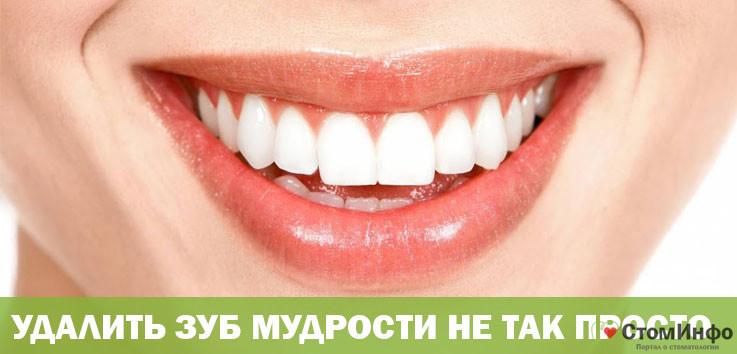Удалить зуб мудрости не так просто