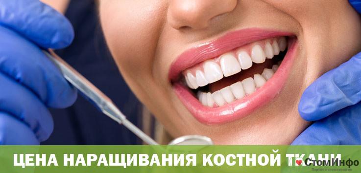 Увеличение кости челюсти имплант стоимость