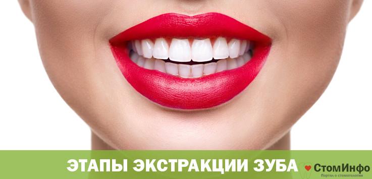 Этапы экстракции зуба