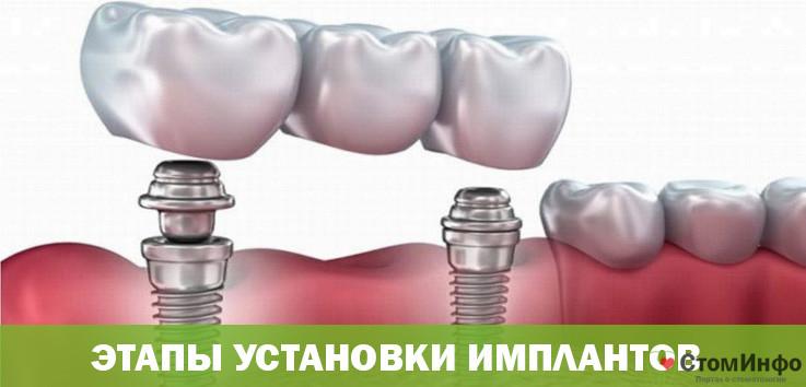 Этапы установки протезов на имплантах