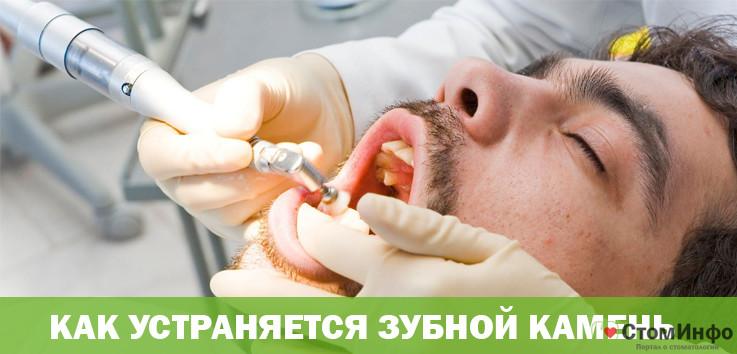Как устраняется зубной камень