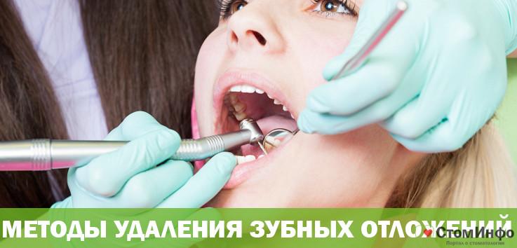 Методы удаления зубных отложений