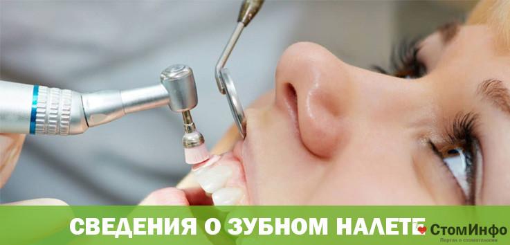Основные сведения о зубном налете