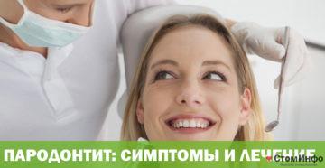 Пародонтит,симптомы и лечение