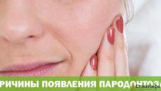Пародонтоз причины и лечение