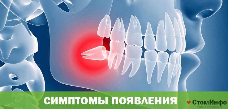 Симптомы появления зубов мудрости