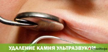 Удаление зубного камня ультразвуком цены