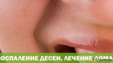 Воспаление десен, лечение в домашних условиях