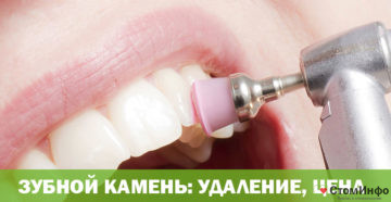 Зубной камень удаление, цена