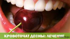 Кровоточат десны: лечение