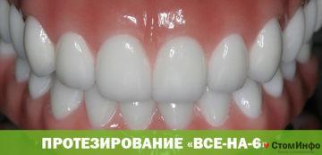 Протезирование «Все-на-6»