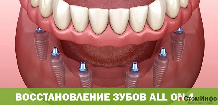 Восстановление зубов all on 4