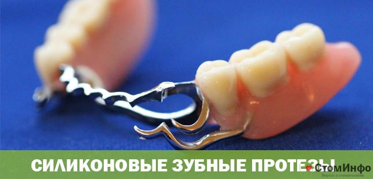 Частичные съемные зубные протезы