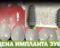 Цена импланта зуба