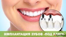 Имплантация зубов «под ключ»: стоимость и особенности процедуры