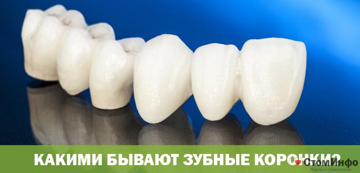 Какими бывают зубные коронки?