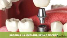 Коронка на имплант: цена в Москве
