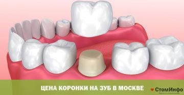 Цена коронки на зуб в Москве