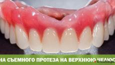 Цена съемного протеза на верхнюю челюсть