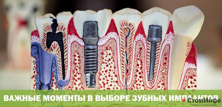 Важные моменты в выборе зубных имплантов