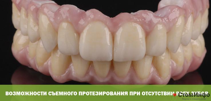 Возможности съемного протезирования при отсутствии всех зубов