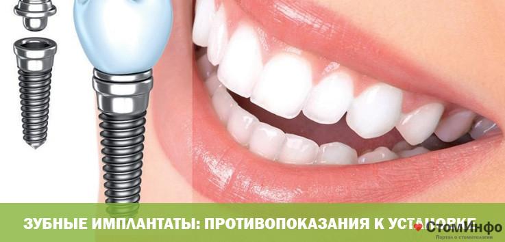 Зубные имплантаты: противопоказания к установке
