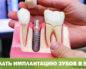 Где сделать имплантацию зубов в Москве?