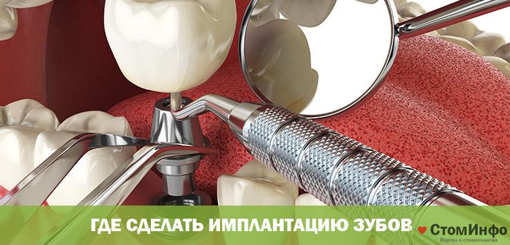 Где сделать имплантацию зубов