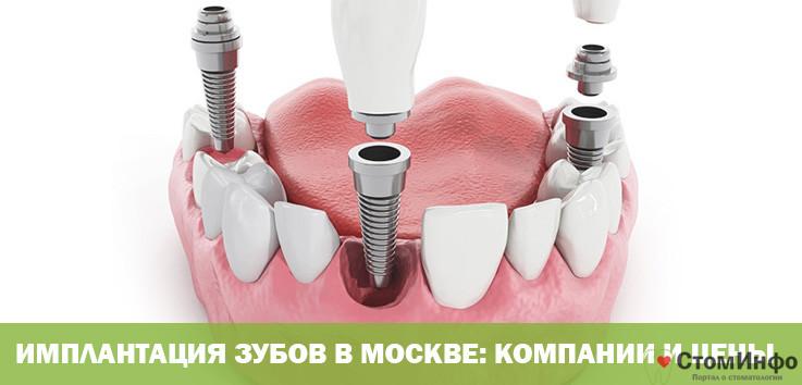 Имплантация зубов в Москве: компании и цены