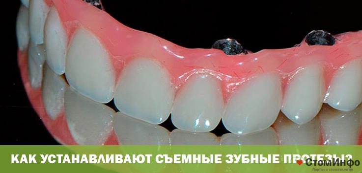 Как устанавливают съемные зубные протезы?