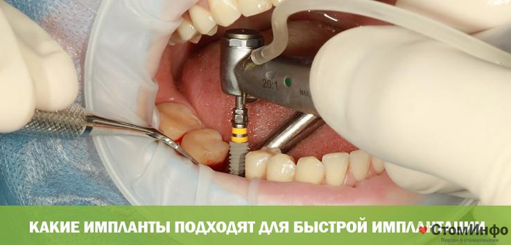Какие импланты подходят для быстрой имплантации