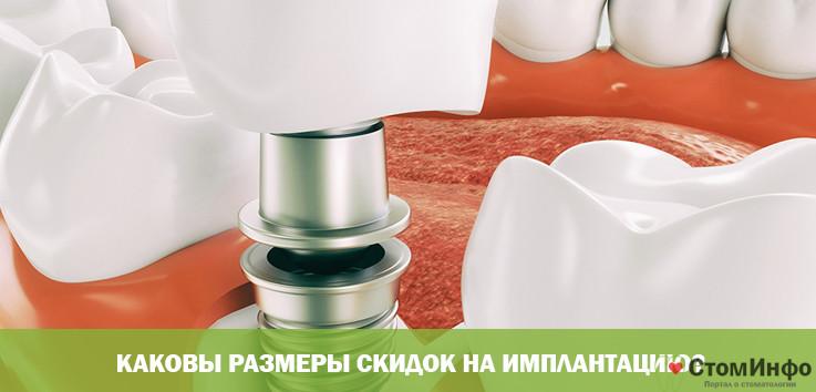 Каковы размеры скидок на имплантацию