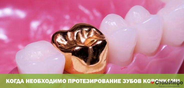 Когда необходимо протезирование зубов коронками