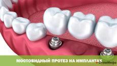 Мостовидный протез на имплантах