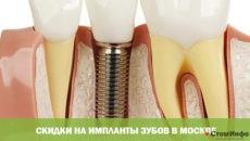 Скидки на импланты зубов в Москве