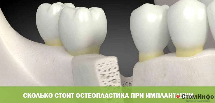 Сколько стоит остеопластика при имплантации
