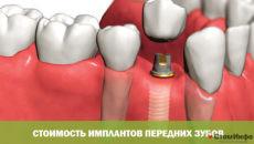 Стоимость имплантов передних зубов