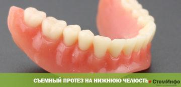 Съемный протез на нижнюю челюсть