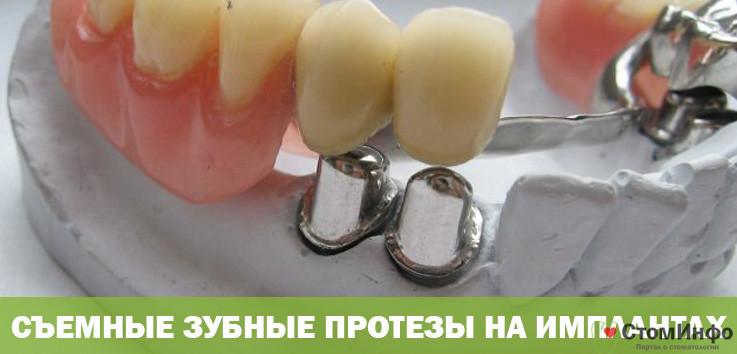 Съемные зубные протезы на имплантах