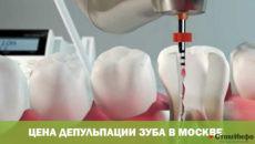 Цена депульпации зуба в Москве