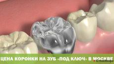 Цена коронки на зуб «под ключ» в Москве