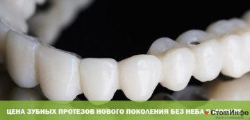 Tsena zubnykh protezov novogo pokoleniya bez neba v Moskve
