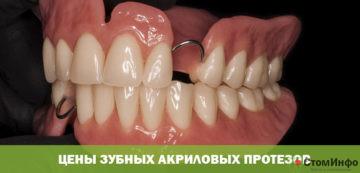 Цены зубных акриловых протезов