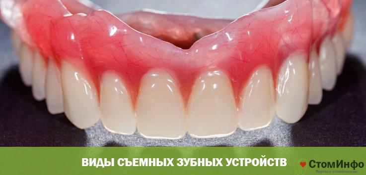 Виды съемных зубных устройств