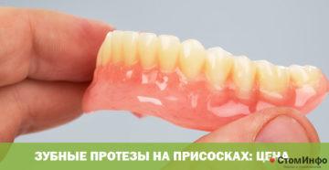 Зубные протезы на присосках: цена
