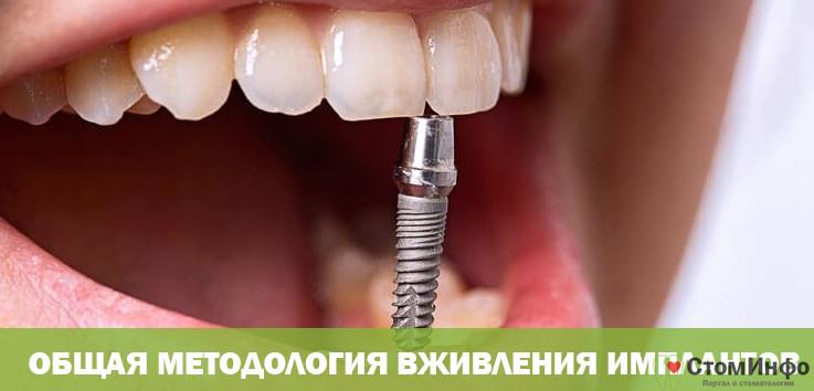Общая методология вживления имплантов