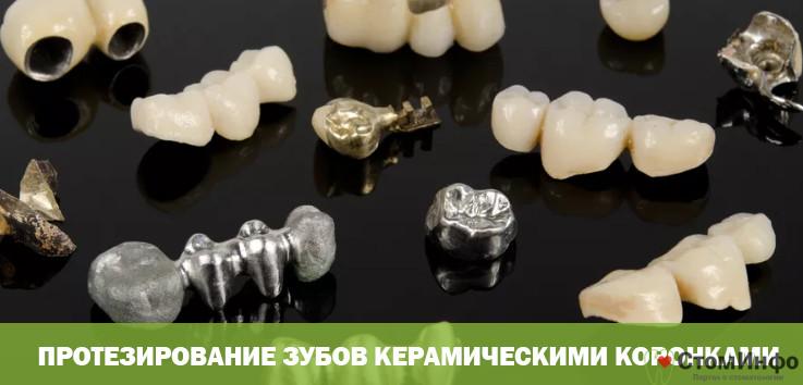 Протезирование зубов керамическими коронками